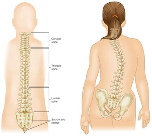 Dr Dina Kulik and Scoliosis, spinal curvature