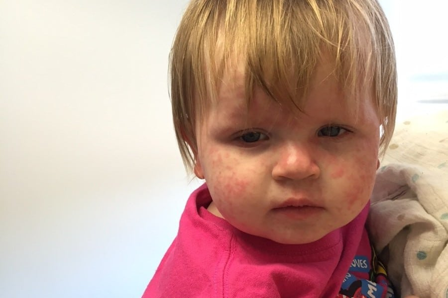 What Does The Roseola Rash Look Like?