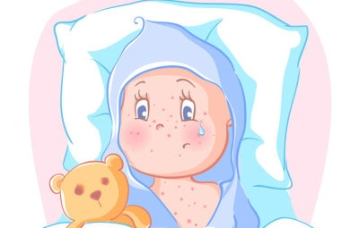 Dr Dina Kulik - Kids Health Blog - baby acne