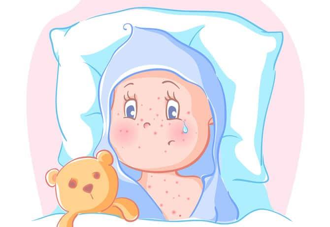 Dr Dina Kulik - Kids Health Blog - baby acne