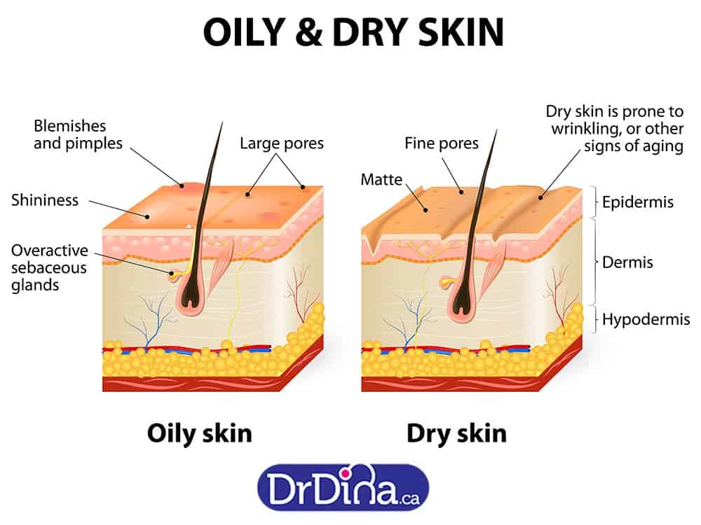 Dr Dina Kulik Baby Acne Different Types Of Acne And How
