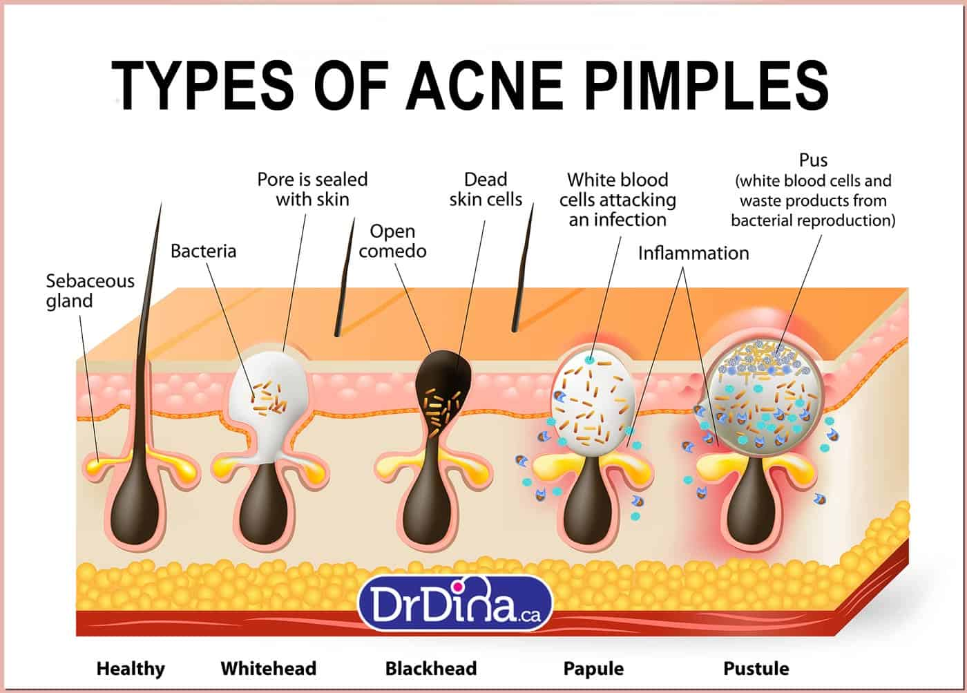 DrDina-Kids-Health-cystic-acne-1a